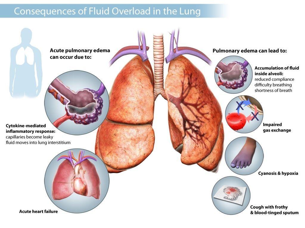 Lungs - UKidney\'s Nephrology Community