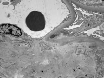 Image 6: Amyloidosis (1)