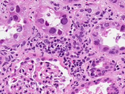 Image 2: BK Nephropathy (1)