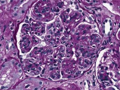 Image 3: Membranoproliferative glomerulonephritis (1)