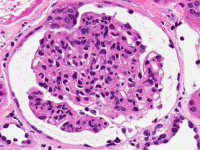 Image 4: Postinfectious glomerulonephritis