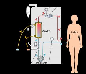2000px-Hemodialysis-en